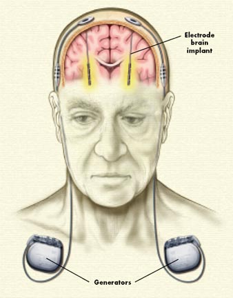 Deep brain stimulation - Brown University