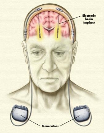 Deep brain stimulation - Brown University